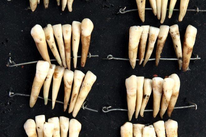 صورة لأسنان عدد من الجنود الذين قتلوا خلال معركة واترلو