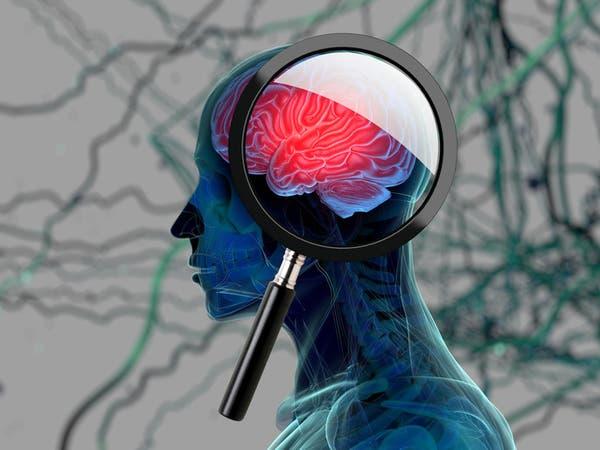 دراسة طبية: النسيان دليل على الذكاء وليس الغباء