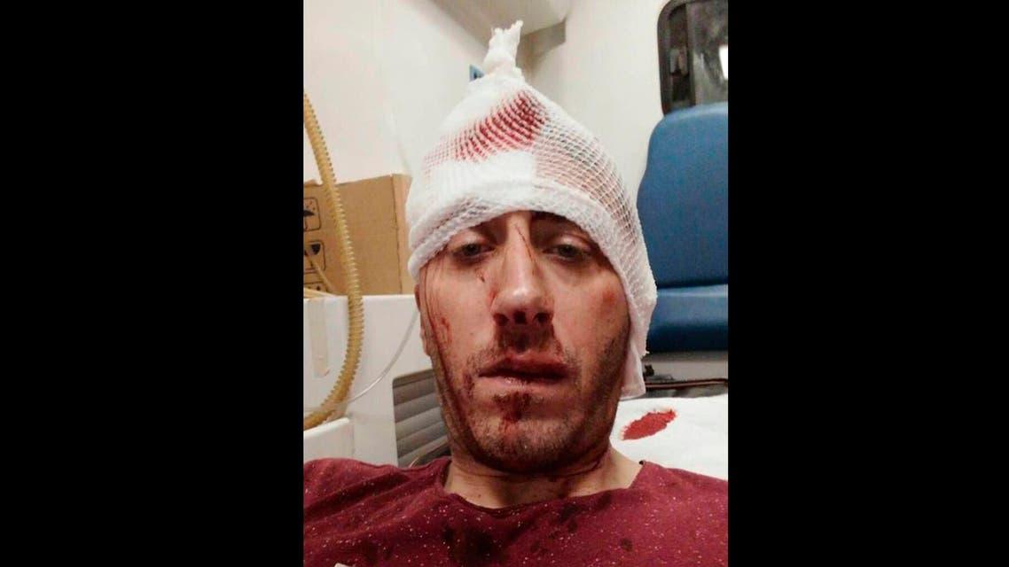 Journalist Vladimir Kovacevic is hospitalized after he was beaten in Banja Luka, Bosnia. (AP)