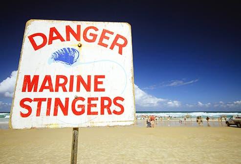 يعالج آثار لسعات قنديل البحر