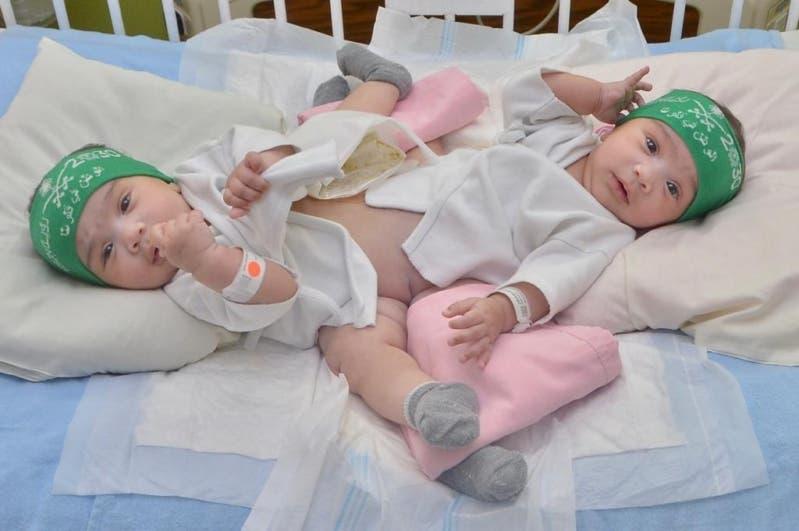 Saudi Siamese twins. (Supplied)