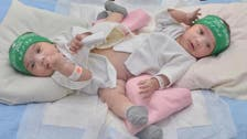 Surgery to separate Saudi conjoined twins postponed