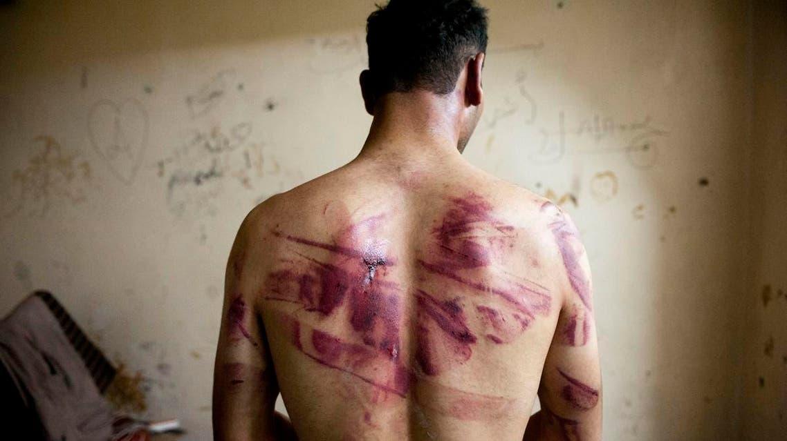Syria torture. (AFP)