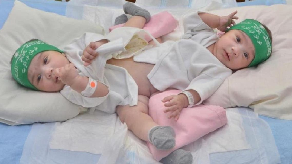 Saudi conjoined twins Sheikha and Shumukh to be separated on Thursday. (Supplied)