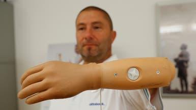 أمل جديد لمبتوري الأطراف.. ذراع صناعية متصلة بالعظام