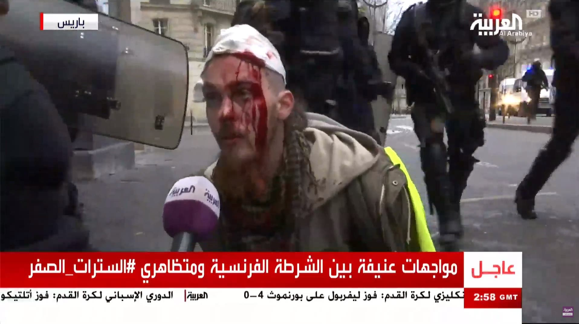 injured protesters paris Al Arabiya