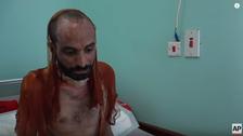 بعد فيديو مرعب لمعتقلين.. ميليشيات الحوثي تقر بالتعذيب