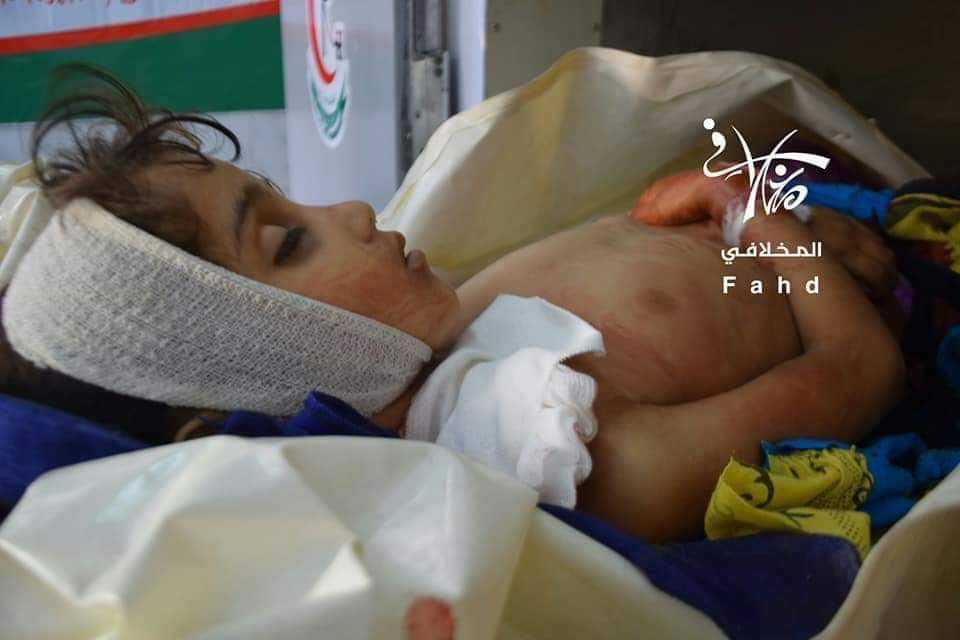 الطفلة زينب بعد ان انتزعت روحها رصاص قناص حوثي
