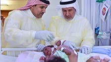 Saudi team to separate Tanzanian conjoined twins on Sunday