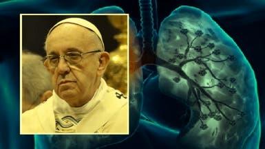 قصة 3 أيام هددت بابا الفاتيكان استأصلوا فيها إحدى رئتيه