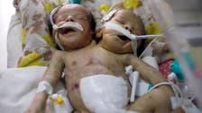 کنگ سلمان ریسکیو سینٹر جڑے ہوئے یمنی بچوں کو سعودی عرب منتقل کرنے کے لیے کوشاں