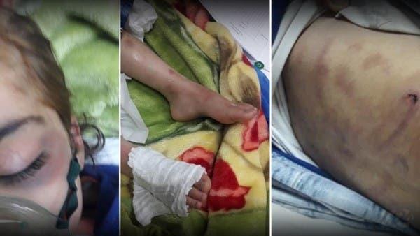 موت طفلة يهز بغداد.. حرق وصعق وكي على يد زوجة أبيها