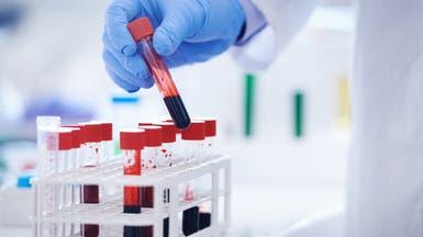 في سابقة من نوعها.. تحليل دم يكشف الإصابة بسرطان الثدي