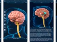 لأطباء المخ والأعصاب.. تطبيقات تساعدكم في التشخيص