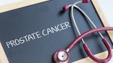 معدل الإصابة بسرطان البروستات ووفياته مستقرة عالميا