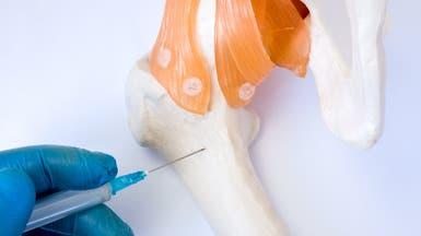هل توصل الطب إلى علاج إصابات النخاع الشوكي؟