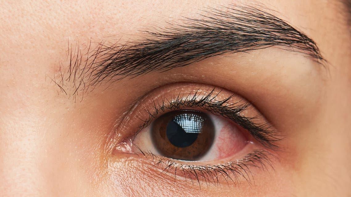 حساسية عين