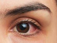 عدسات لاصقة لعلاج حساسية العين قد تطرح قريباً!
