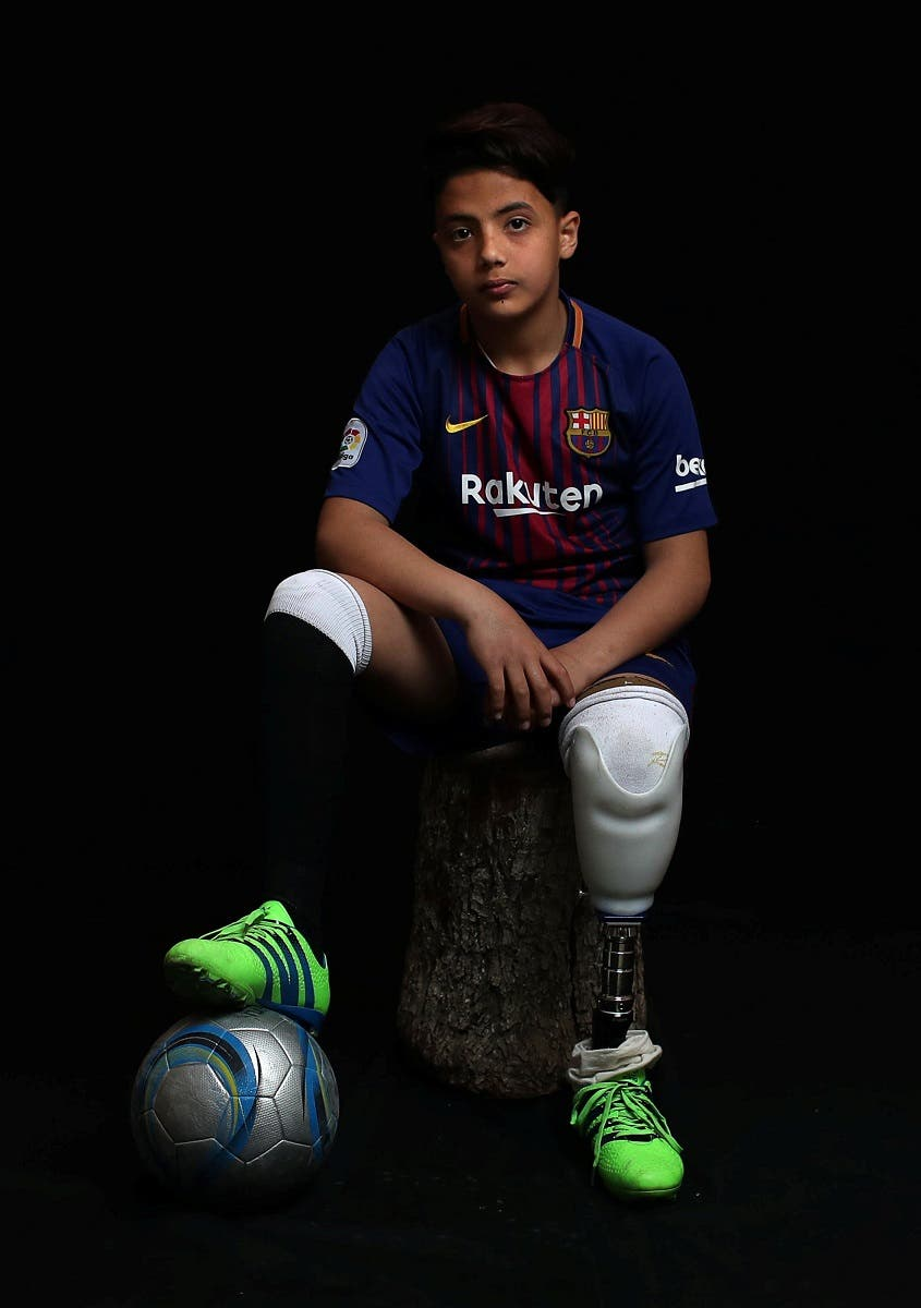 Abdel-Rahman Nofal, 12, who, according to medics, lost his left leg after he was shot by Israeli forces during a protest at the Israel-Gaza border, poses for a photo in Gaza City. (Reuters)