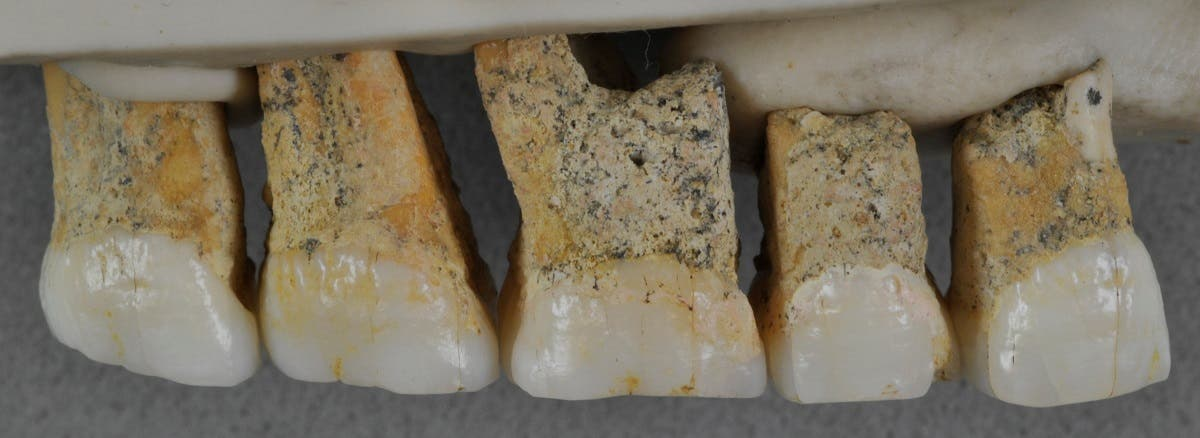 Right upper teeth of an individual of the newly identified species Homo luzonensis, found in Callao Cave on Luzon Island. (Reuters)