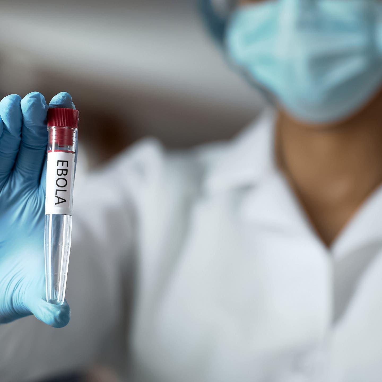 فيروس إيبولا يضرب في وسط وغرب إفريقيا.. وواشنطن تحذر
