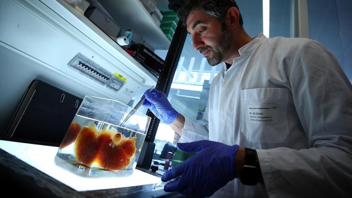 Dr. Ali Ertuerk looks at a transparent human brain at his laboratory in Munich. (Reuters)