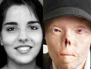 شوهها حادث فباتت أيقونة للتوعية..تعرف على قصتها الملهمة