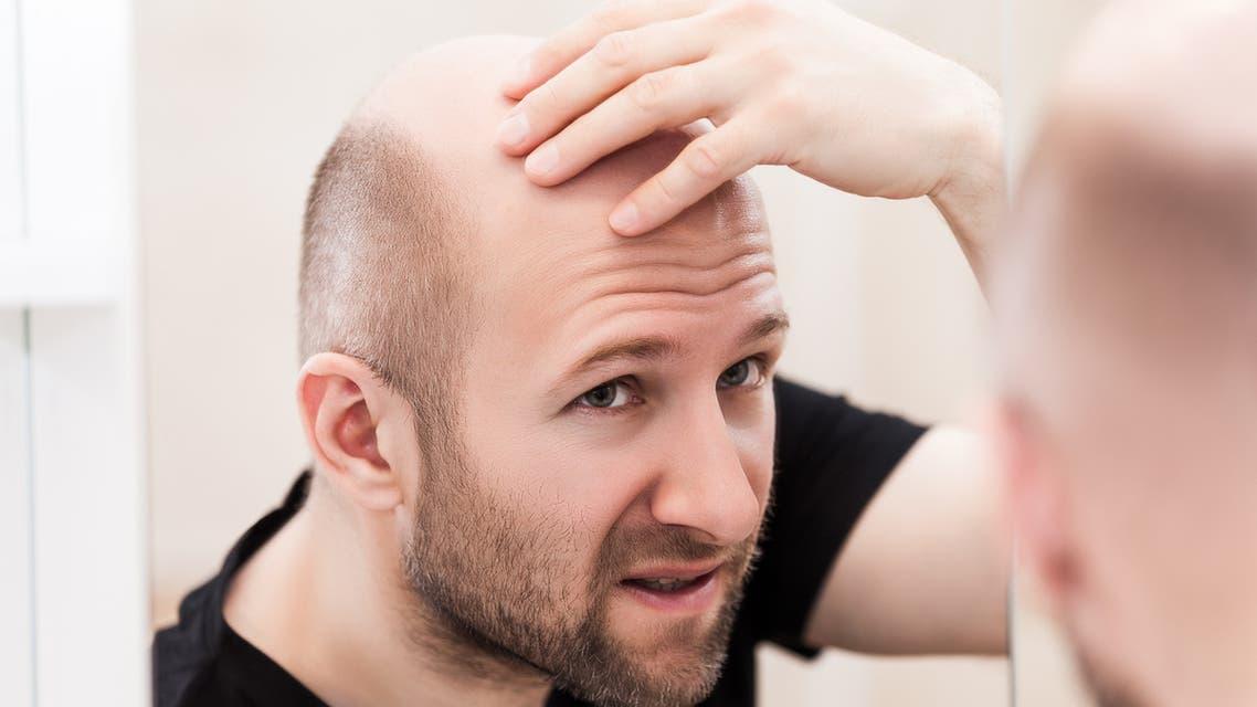 Bald man looking mirror at head baldness and hair loss - Stock image