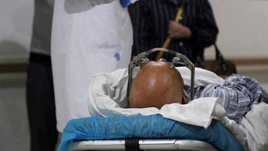 A stereotactic device presses into the head of a brain surgery patient at Ruijin Hospital's functional neurosurgery center in Shanghai, China. (AP)