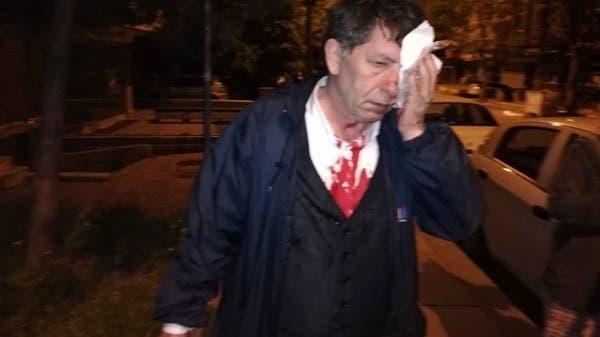 هجوم بمضارب بيسبول على صحافي معارض لأردوغان