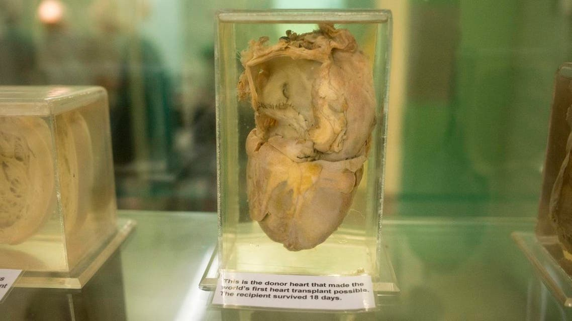 This photograph shows the original donor heart used in the world's first heart transplant performed on December 3, 1967 and is on display at the Heart of Cape Town museum, at Groote Schuur Hospital. (AFP)