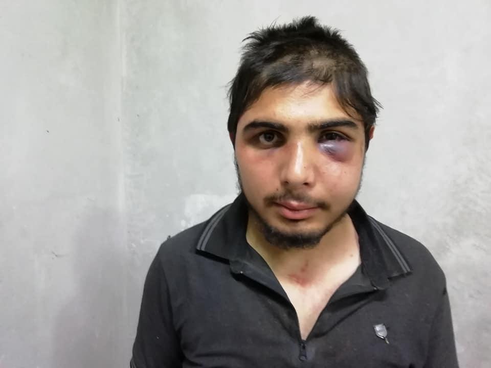 Syrian Journalist 2. (Supplied)