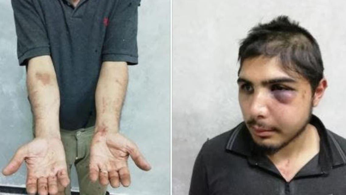 Syrian Journalist 6. (Supplied)