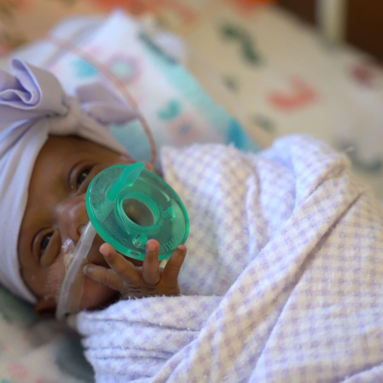 الرضيعة الأصغر بالعالم.. تزن أقل من تفاحة لكنها بصحة جيدة