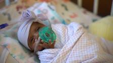 کیلیفورنیا: دنیا کا سب سے ننھا اور کم وزن بچہ بحفاظت گھر پہنچ گیا