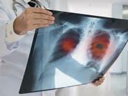 علاج مناعي واعد لسرطان الرئة يرفع فرص الشفاء إلى 25%
