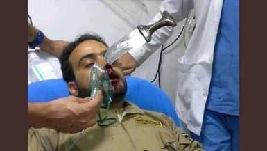 صور مؤلمة.. قيادي حوثي يغرس خنجره في وجه حارس مطعم