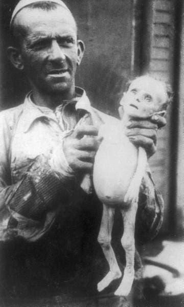 صورة لرجل وهو يرفع جثة طفل توفي بسبب سوء التغذية ببولندا