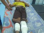 صور مؤثرة.. مجددا الحوثيون يزهقون براءة أطفال اليمن