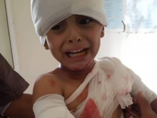صورة تفطر القلوب.. طفل يمني مصاب بشظايا حوثية