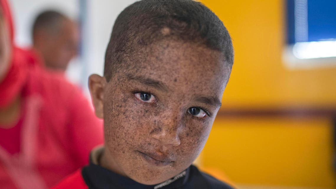 When light is lethal: Moroccans struggle with skin disorder - AP