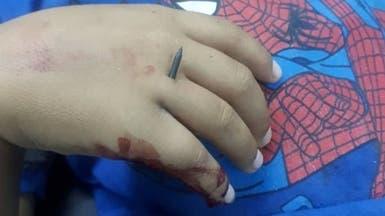 شاهد مسامير مجنّحة اخترقت جسد طفل سوري بقصف للأسد