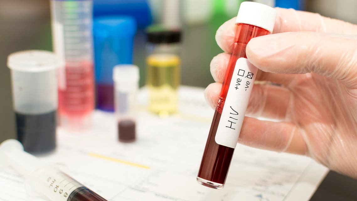 HIV - blood in a test tube stock photo