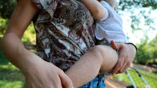 Children grow body hair from alleged drug mix-up in Spain