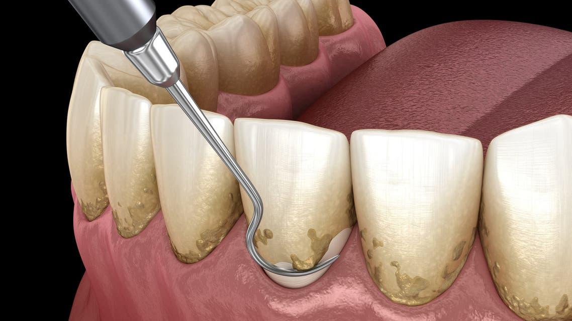 صحة الفم اللثة أمراض