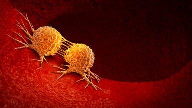 السرطان يفتك بمحافظة عراقية.. وأكثر من 7 آلاف مصاب