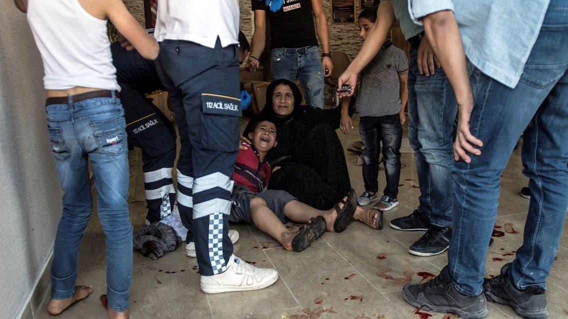 طفل مصاب بسبب القصف التركي