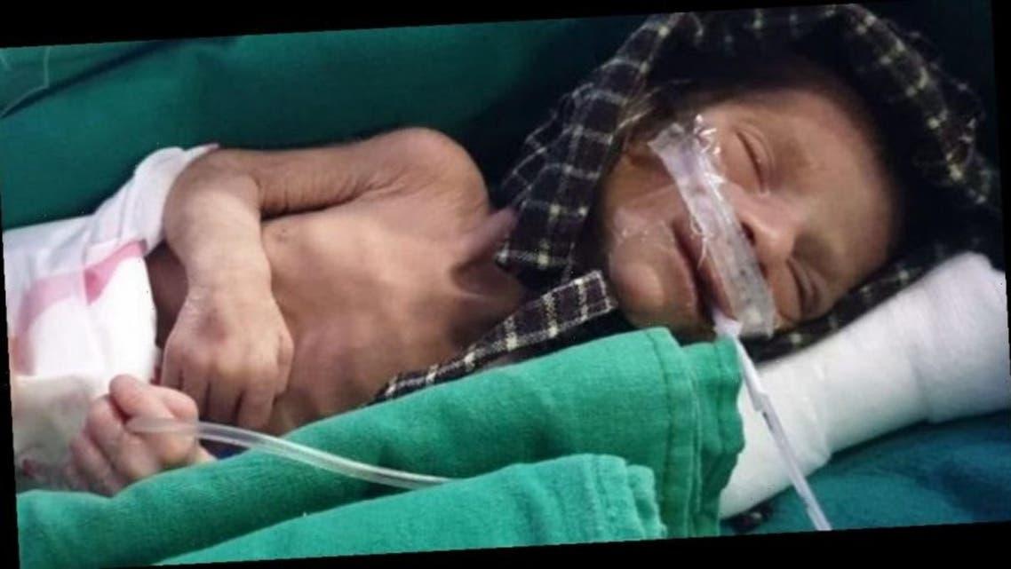 معجزه زنده ماندن نوزاد دختر هندی پس از دو روز تدفین در قبر