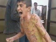 بعد صورة الطفل الكردي المحروق.. الأمم المتحدة تتدخل