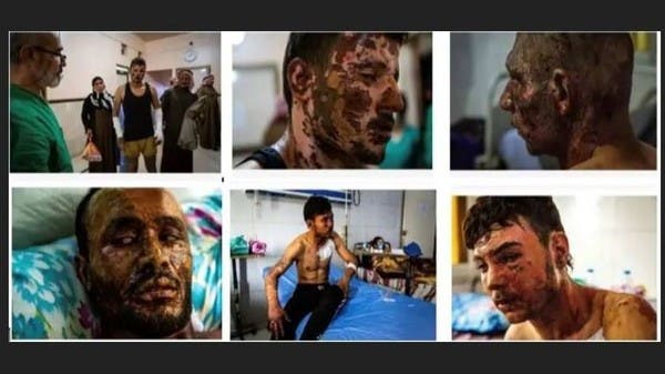 """""""نيوزويك"""" تنشر صوراً مروعة لأكراد هوجموا بأسلحة تركية محرمة"""